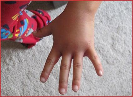 fat hand