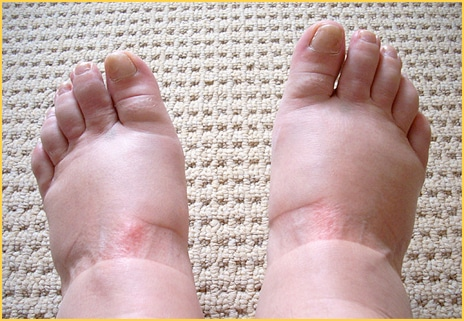 Pregnant Feet