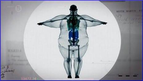 x-ray of a 900-pound man