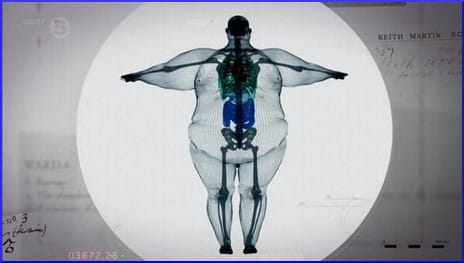 x-ray of a 900-pound man