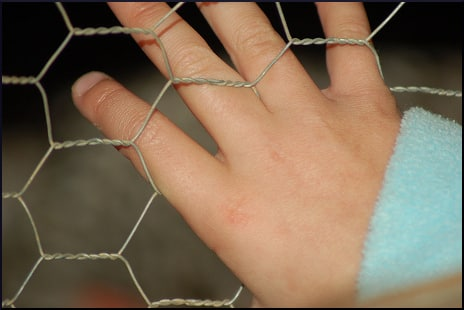chicken-wire-hand