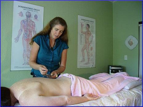 acupuncture-session